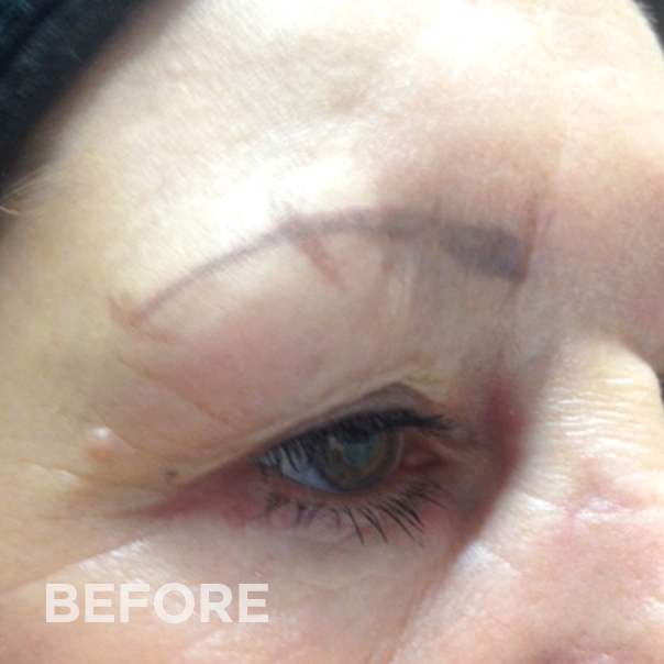Before permanent makeup correction
