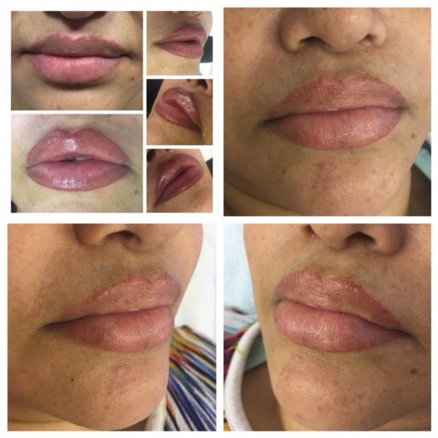 Permanent Makeup: Healed lip blush