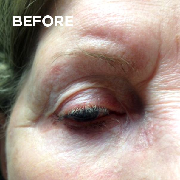 Permanent Eyeliner & Lash Enhancement - Gemma Kennelly