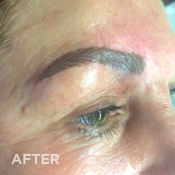 After permanent makeup correction