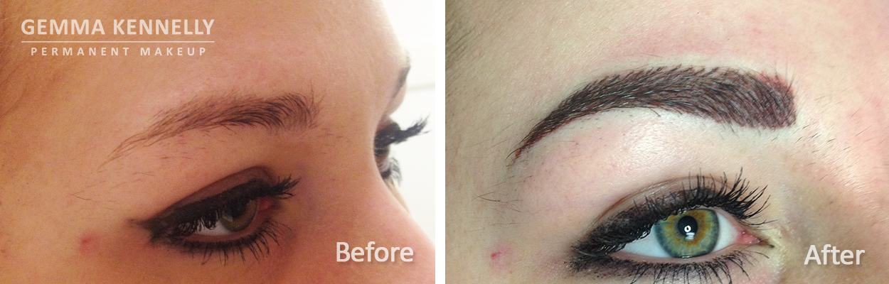 Permanent combination eyebrow, Manchester